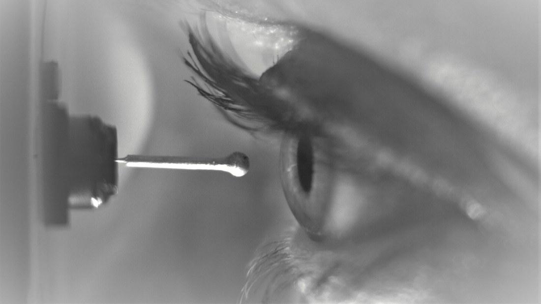 Entwicklung eines neuen Ästhesiometers zur Messung der Hornhautsensibilität.