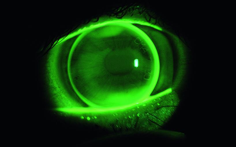 DCT-Lens